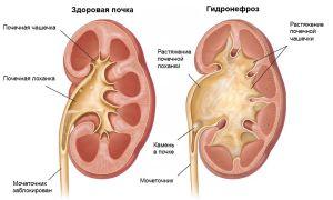 Медицина хроническии пилонефрит если болит живот на 32 неделе беременности