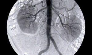 рентген исследование почек